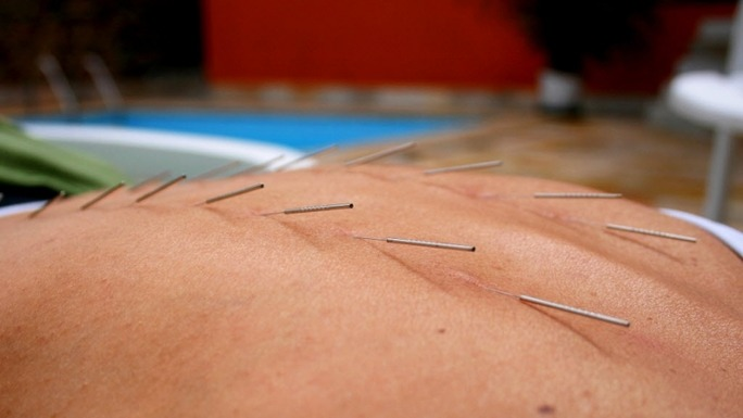 preview-full-acupuncture