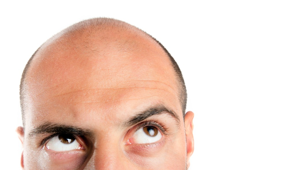 man suffering from hair loss looking up at bald head